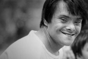 visage d'une personne trisomique